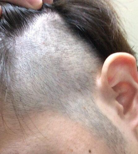 ツーブロックの髪型でバリカン3mmを入れた写真