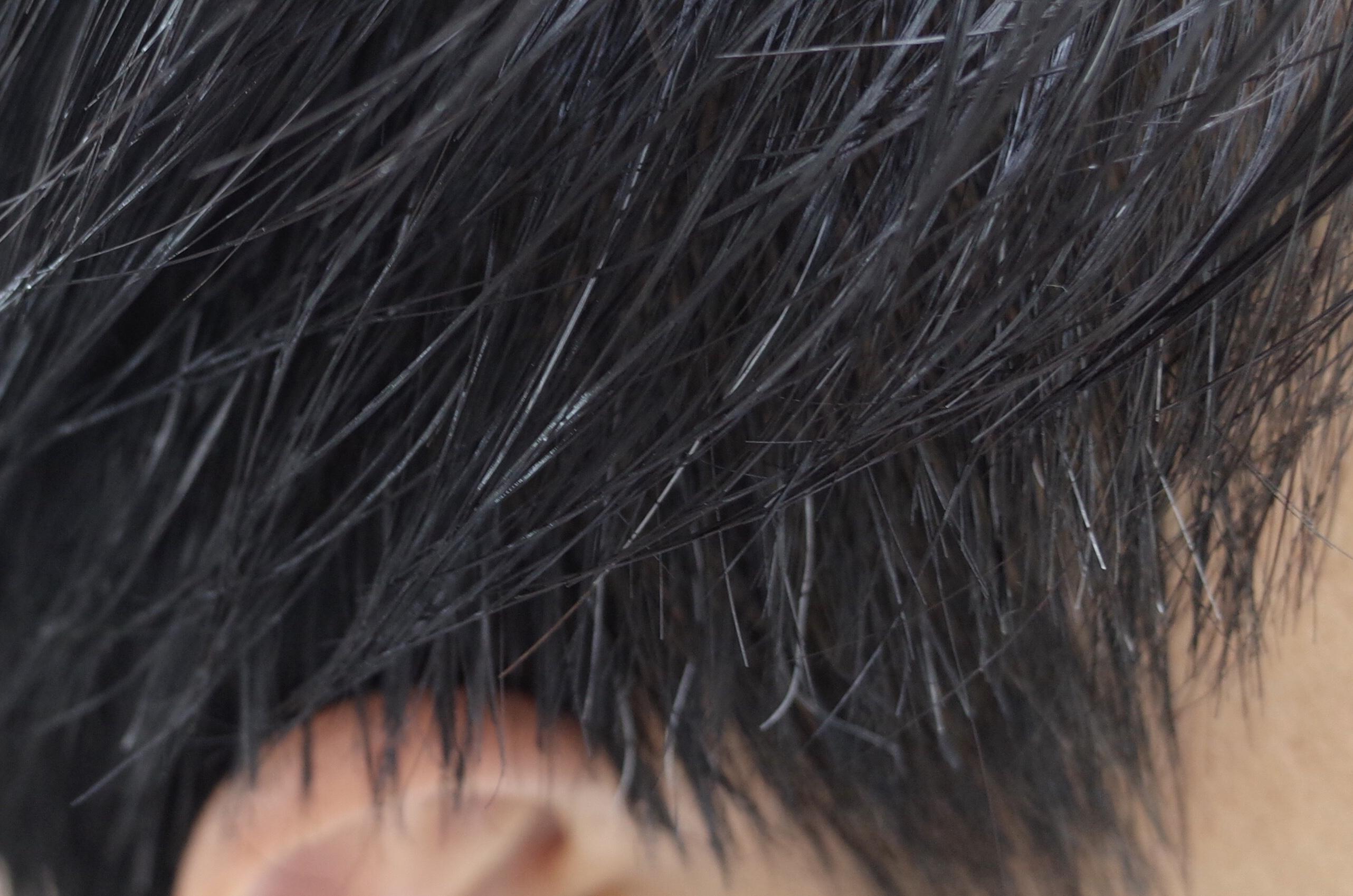 男性を横から写した写真。パラパラと白髪のある様子